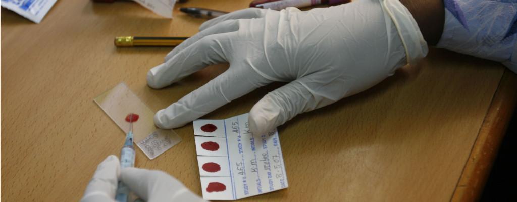 Malaria trial, Kampala, Uganda